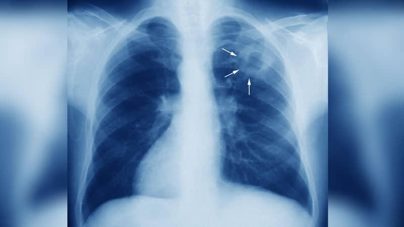 снимка на бели дробове с туберколоза
